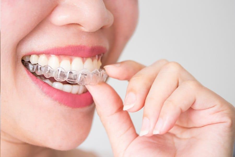 Элайнеры 3D Smile – невидимая помощь вашей улыбке!